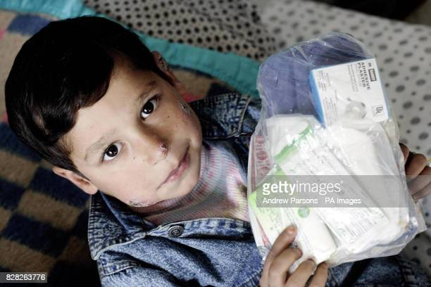 Young boy suffering from leishmaniasis, a disease transmitted by sand flies, at the Maywand Hospital in Kabul, Afghanistan, Wednesday December 14...