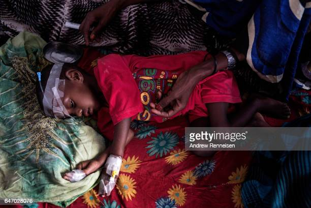 A young boy suffering from malnutrition lies in a bed inside the malnutrition ward at Garowe General Hospital on February 27 2017 in Garowe Somalia...
