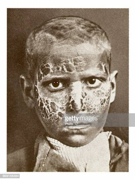 A young boy suffering from pellagra the disease of the three D's dermatitis diarrhea dementia