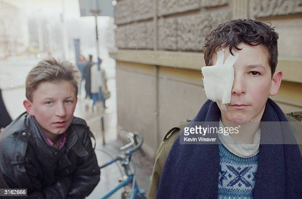 Young boy with a bandaged eye with his friend in Kosovo.