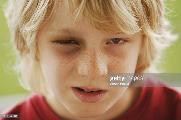 young boy with black eye. - black eye stock pictures, royalty-free photos & images