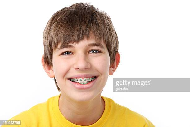young boy with braces - brace stock pictures, royalty-free photos & images