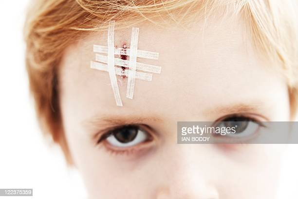 young boy with head wound - head injury stock photos and pictures