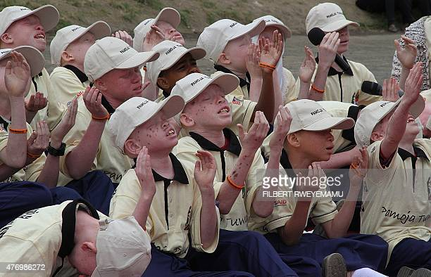 Young children with albinism recite a poem to mark the International Albinism Awareness Day in the eastern on June 13 2015 in the Tanzanian city of...
