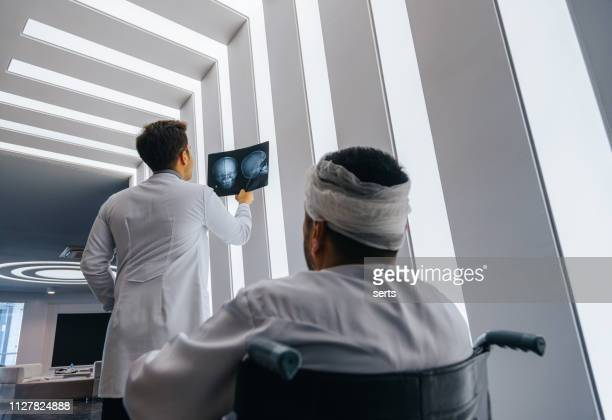 young doctor man looking x-ray of the patient's skull - head injury stock photos and pictures