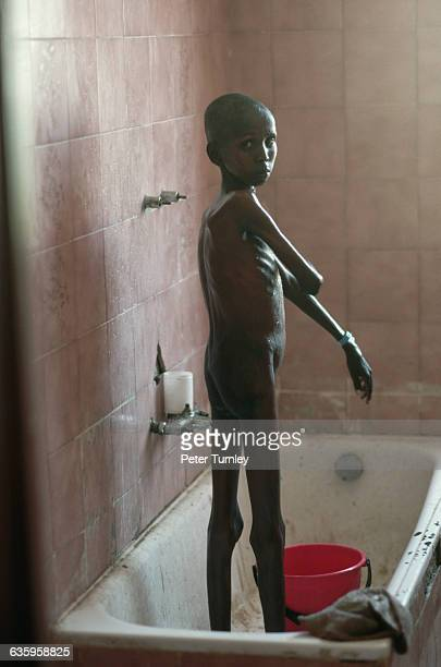 Young famine victim bathes himself in center run by the International Action Against Hunger Organization during the famine In the 1980s civil war...