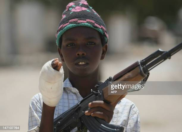 A young fighter from the AlShabab militia shows the wound in his hand which he suffered while battling Somali government forces in a frontline...