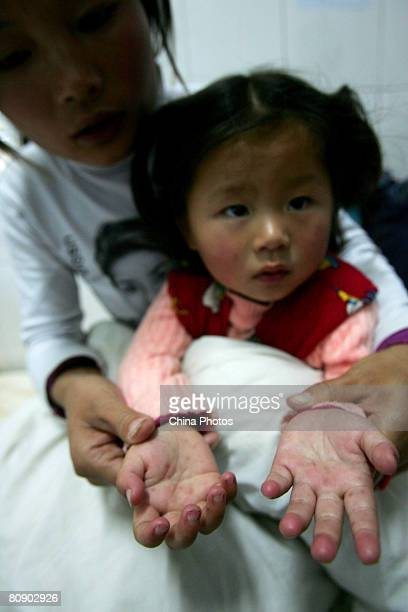 A young girl aged two who suffers from the hand foot and mouth disease caused by the enterovirus 71 displays her hands in a hospital on April 28 2008...