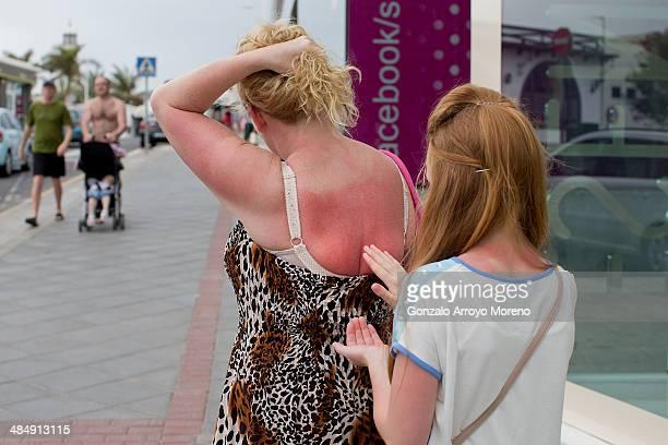 A young girl applies sun cream to a relative's back in Puerto del Carmen on April 12 2014 in Lanzarote Spain Lanzarote where British Prime Minister...