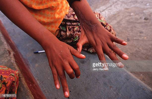A young girl displays how her hands were damaged by an exploding cigarette lighter a few years previously She lights cheroots for her blind...