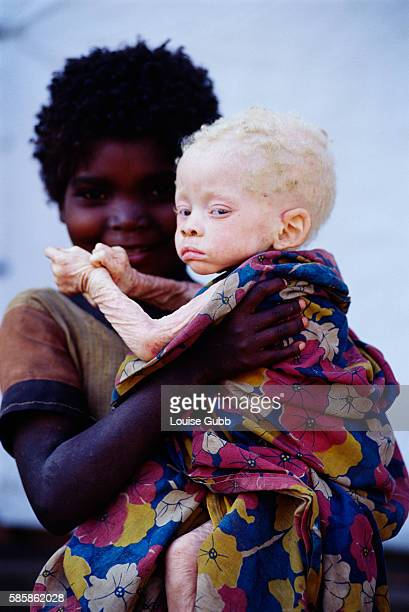 A young girl holds her blind albino brother at a Camacupa MSF Supplementary Feeding Center in August of 2001 The Angolan civil war has left thousands...