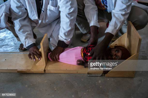 A young girl is checked for signs of malnutrition in a government run health clinic on February 25 2017 in Yaka Somalia Somalia is currently on the...