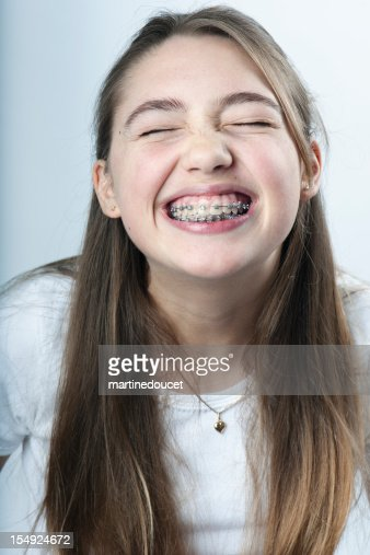 Young Girl Making The Biggest Smile With Braces Vertical -1221