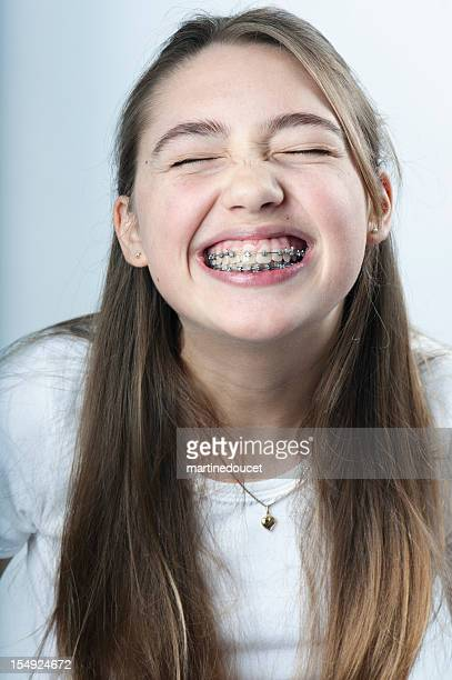 young girl making the biggest smile with braces, vertical. - beautiful girl smile braces vertical stock photos and pictures