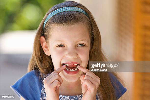 a young girl points to her missing teeth - tooth fairy stock pictures, royalty-free photos & images
