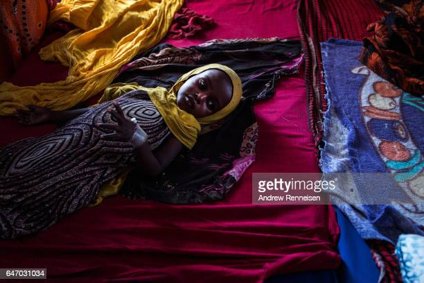 A young girl suffering from malnutrition lies in a bed inside the malnutrition ward at Garowe General Hospital on February 27 2017 in Garowe Somalia...