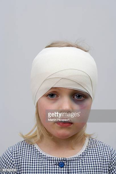 A young girl with a black eye and bandaged head
