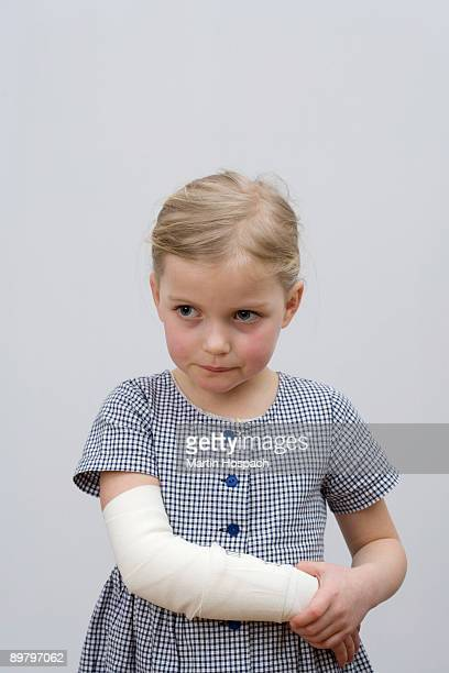A young girl with a broken arm