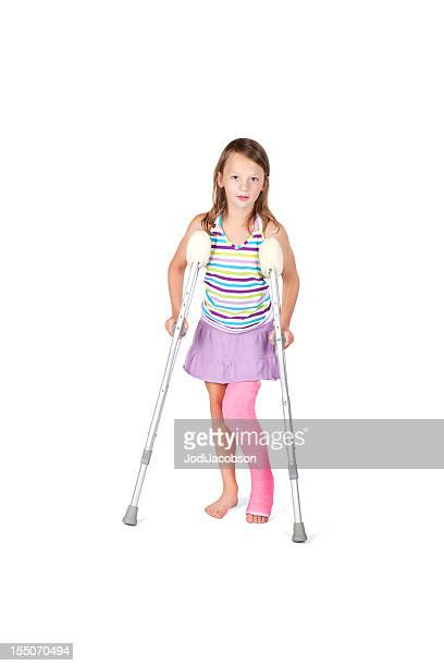 young girl with full leg cast - cast colors for broken bones stock pictures, royalty-free photos & images