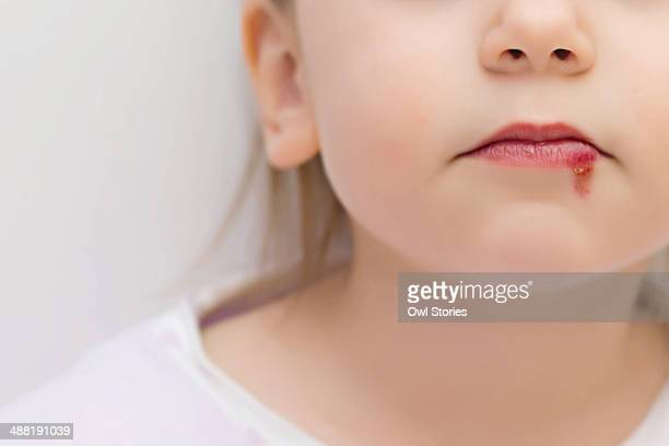 Young girl with wound on the lower lip