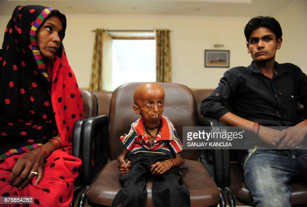 TOPSHOT Young Indian progeria sufferer Rupesh sits with his mother Shanti Devi and younger brother Vakil at Allahabad District Magistrates Office in...