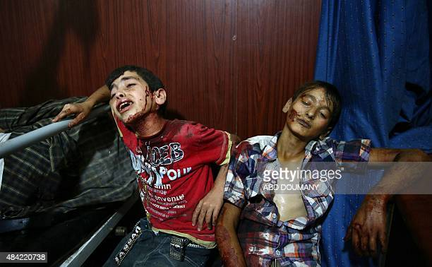 Young injured Syrian boys wait to receive treatment at a makeshift hospital in the rebelheld area of Douma east of the capital Damascus following air...