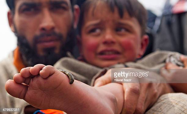 Young Kashmiri child patient cries as he receives leech therapy on his foot from a practitioner on March 21 in Srinagar the summer capital of Indian...