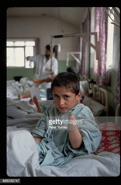 A Young Land Mine Victim with a Missing Hand
