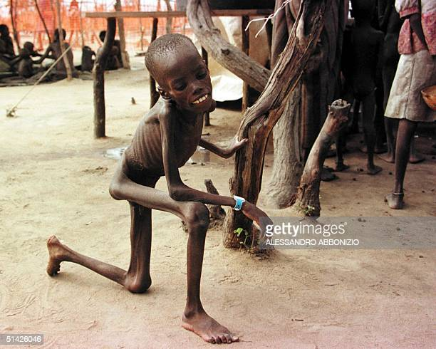 A young malnourished boy uses uses a tree to stand up 16 July at a feeding centre in the town of Ajiep in the Bahr El Ghazal region of Southern Sudan...