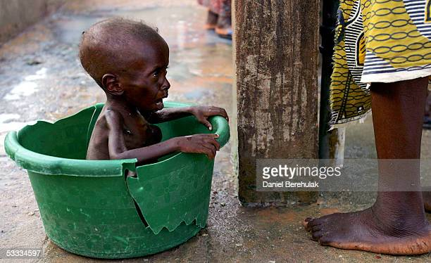 A young malnourished boy waits for his mother to bathe him whilst receiving shelter and care at an MSF Medical Clinic on August 6 2005 in Maradi...
