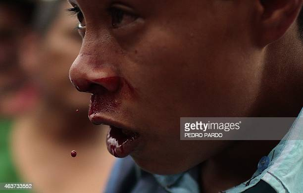A young man bleeds from his face after taking part in a fight representing the Xochimilcas fight to defend their women against the Aztecs in the...