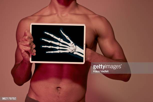Young man holding tablet in front of body to display hand bones