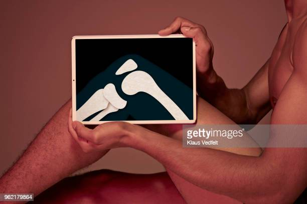 Young man holding tablet in front of leg to display knee bone
