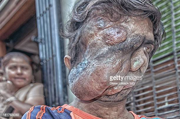 CONTENT] A young man maybe 20 with a severe facial deformity from birth
