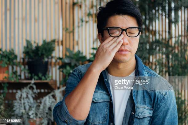 young man rubbing eye with hand - bloodshot stock pictures, royalty-free photos & images