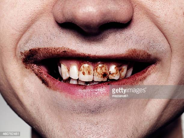Young man teeth with chocolate, close up