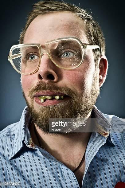 Teeth men with bad Top 20