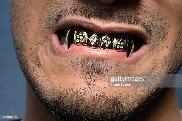 young man wearing teeth grill - bling bling stock pictures, royalty-free photos & images