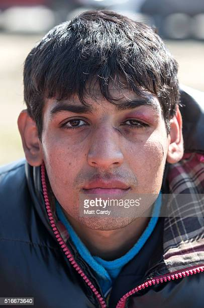 A young man who says he was beaten by Macedonian security forces poses for a photograph at the Idomeni refugee camp on the Greek Macedonia border on...