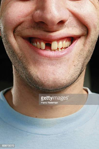 Young man with a missing tooth