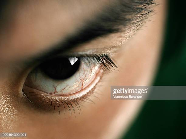 young man with bloodshot eye, close-up - bloodshot stock pictures, royalty-free photos & images