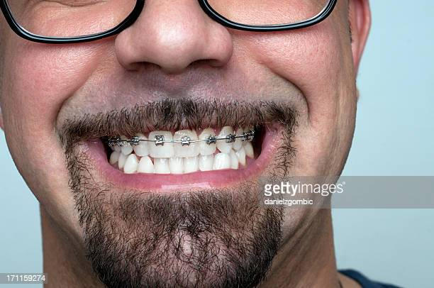 Young man with braces.