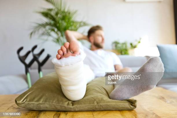 young man with broken leg using smart phone - bandage stock pictures, royalty-free photos & images