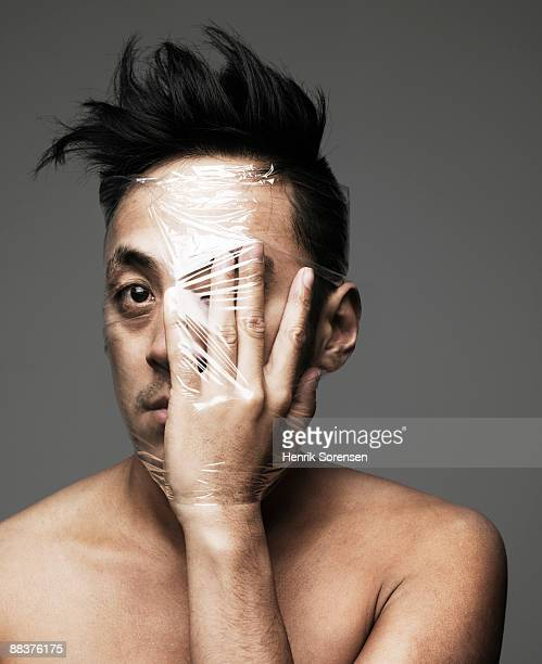 young man with hand  front of his eye wrapped up w