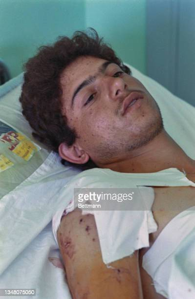 Young Middle Eastern man lying in bed, his right shoulder bandaged, in a hospital in an unspecified area of the West Bank, 1988.