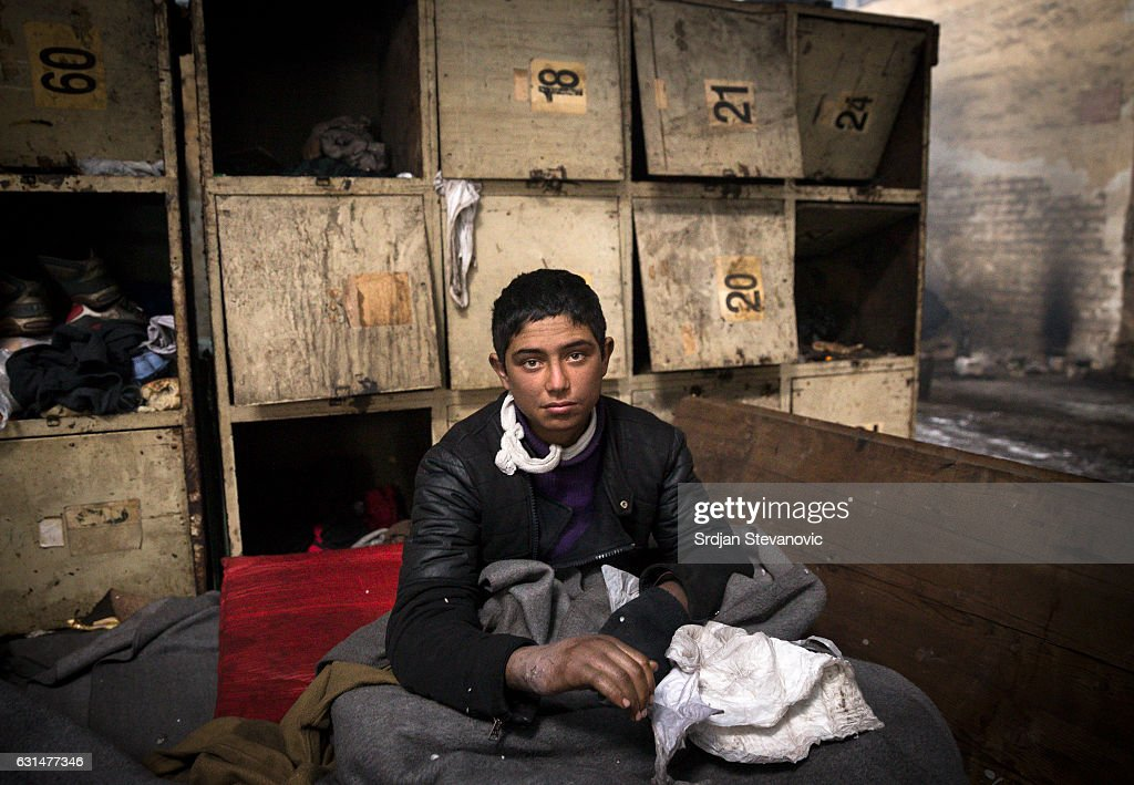 A young migrant shows the photographer his injured hands inside a derelict customs warehouse on January 11, 2017 in Belgrade, Serbia. It is estimated that around 1, 000 migrants are sleeping rough in Serbia, enduring temperatures as low as 20 degrees celcius.