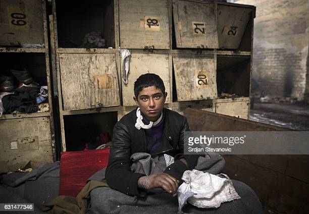 A young migrant shows the photographer his injured hands inside a derelict customs warehouse on January 11 2017 in Belgrade Serbia It is estimated...