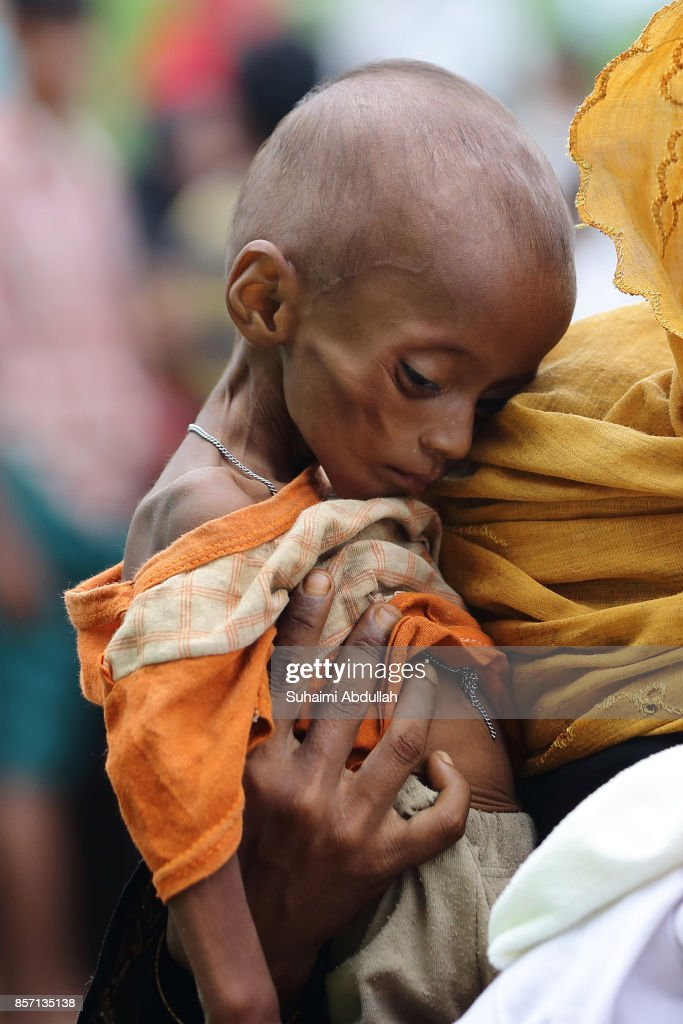 A young Rohingya child is seen in the arms of her mother (not pictured) while queueing up for food aid at the distribution point for food centre on October 2, 2017 in Kutupalong, Cox's Bazar, Bangladesh. Over 430,000 Rohingya refugees have fled into Bangladesh since late August during the outbreak of violence in Rakhine state as Myanmar's de facto leader Aung San Suu Kyi downplayed the crisis and defended the security forces while criticism on her handling of the Rohingya crisis grows. UN refugee chief Filippo Grandi has called on the Myanmar authorities to halt the violence.