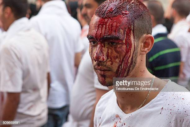 Young shi'ite Muslim man, his face covered with his own blood, participating in an Ashura Day commemoration, in Nabatieh , Lebanon. Ashura Day is an...