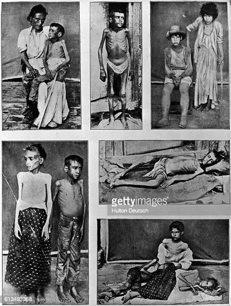 Young skeletal victims of starvation in Cuba during the Spanish-American War, in 1898.